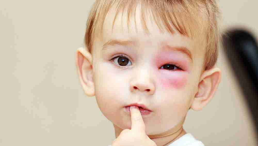 Eye injury in children