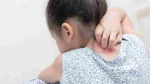 Fungal infections in children