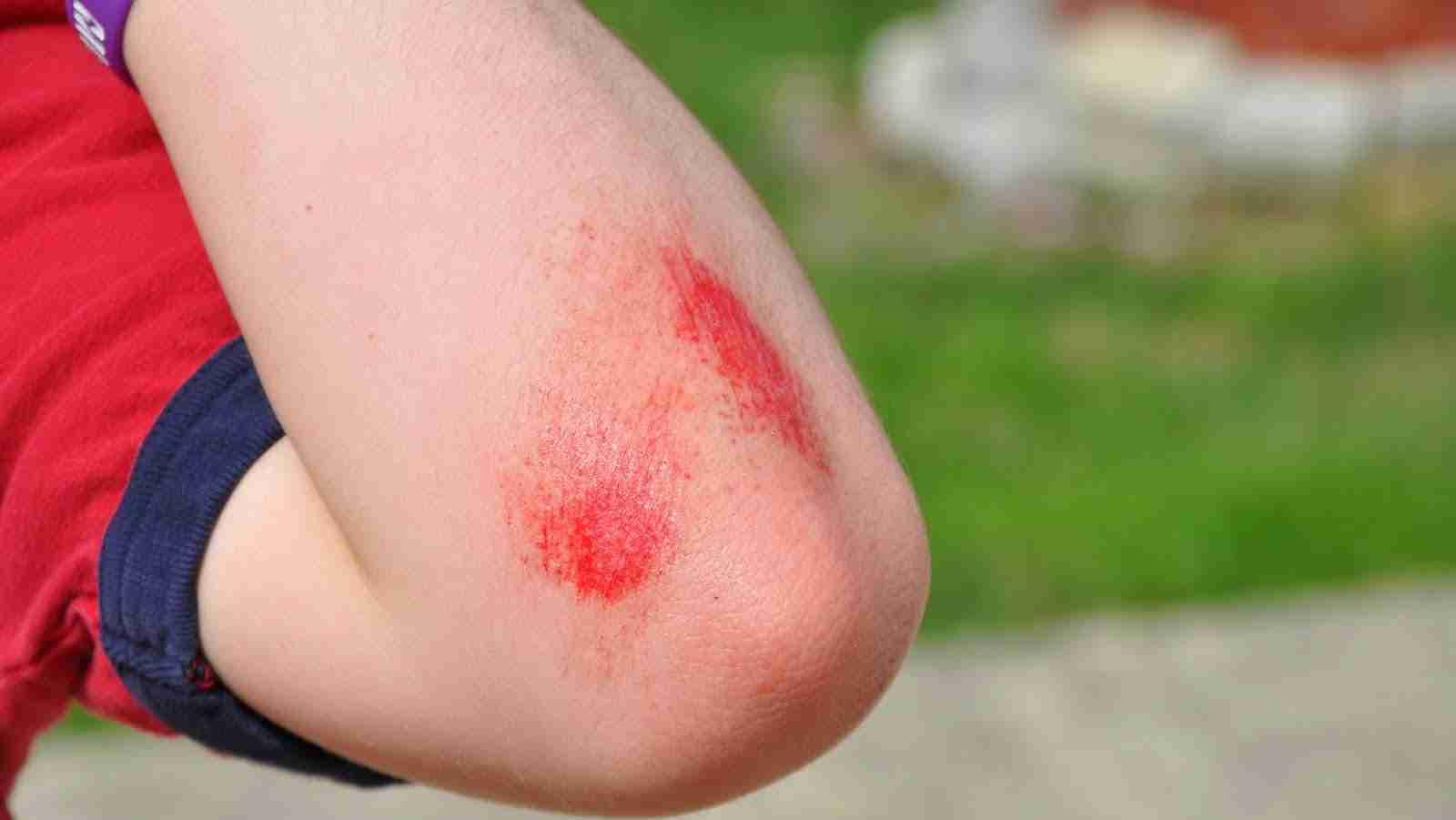 Cuts and Scrapes in children