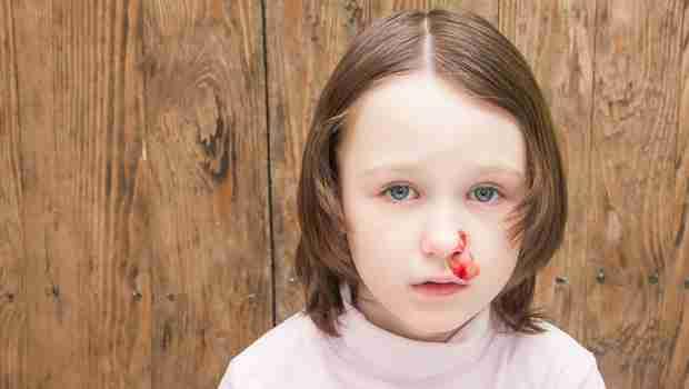 Nosebleed in children